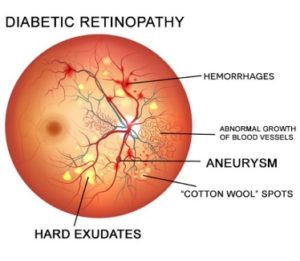 Best Retina Specialist in Pune