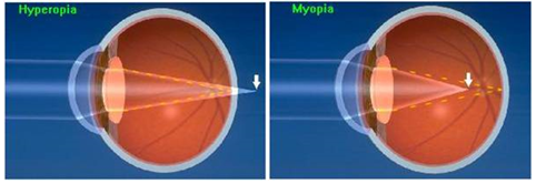 ophthalmologists in Pune