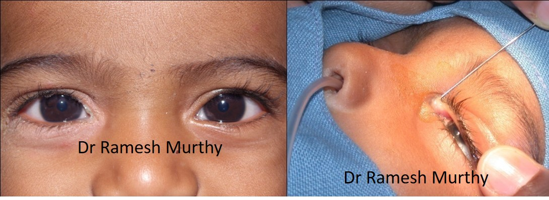 Pediatric ophthalmologists in Pune