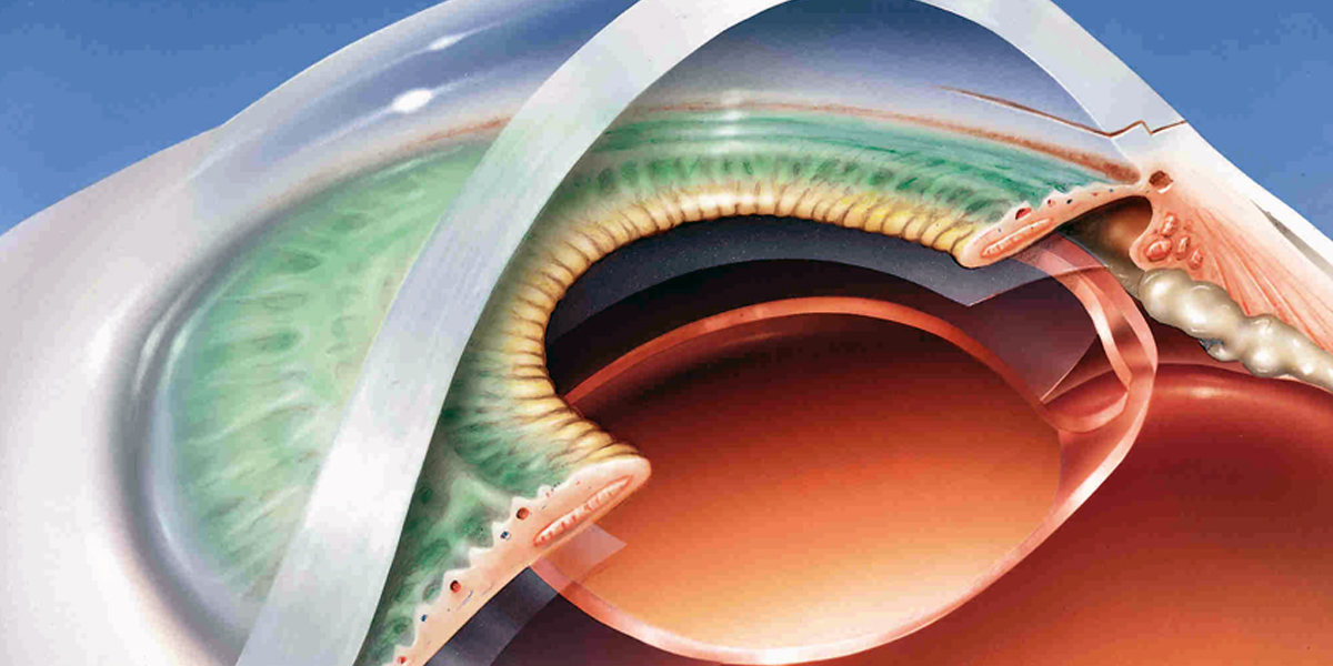 Cataract Surgeon in Pune