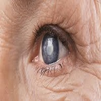Age Related Eye Diseases