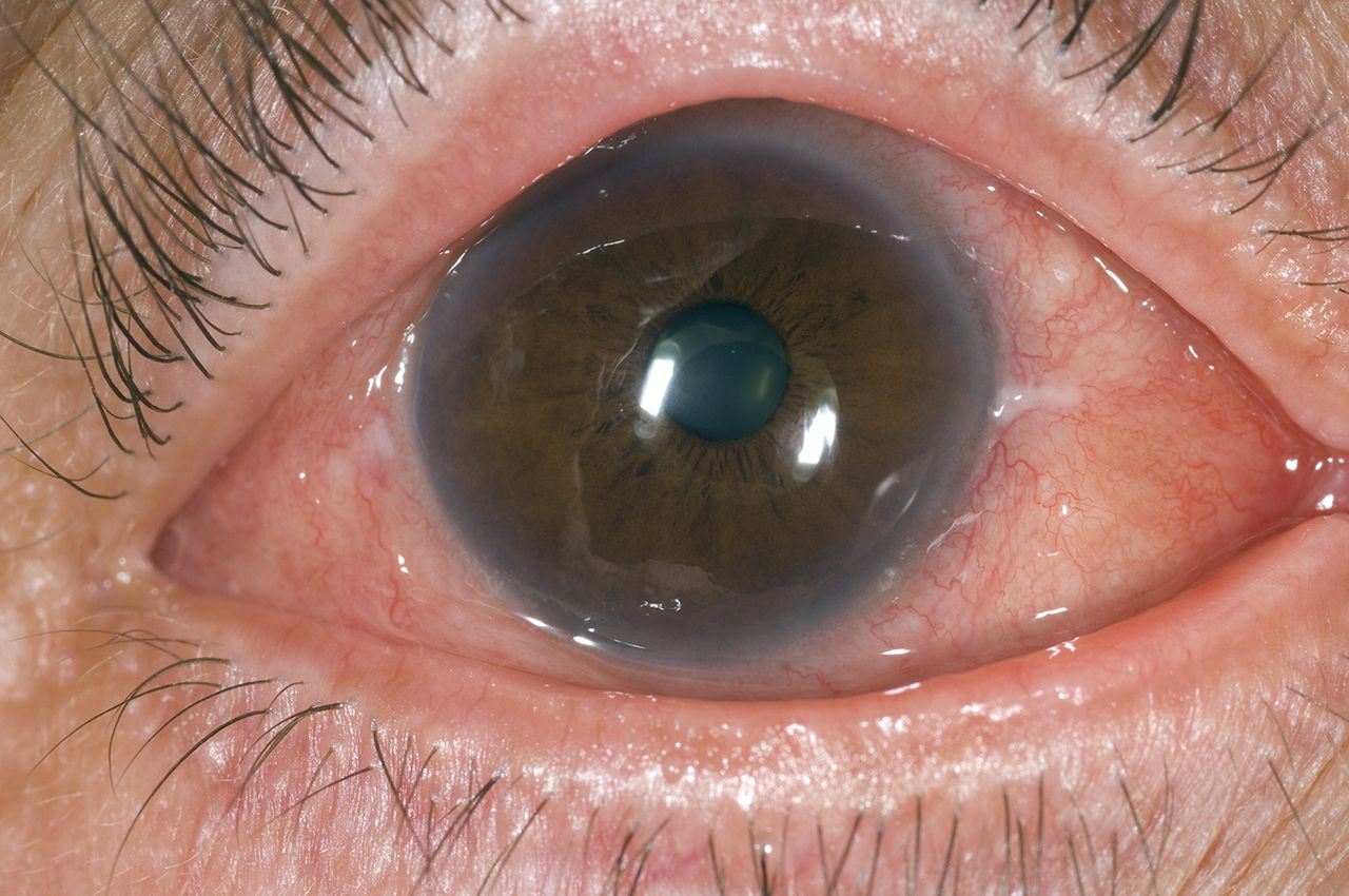 Allergic Eye Disease