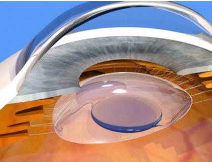 CHOOSING THE RIGHT INTRAOCULAR LENS