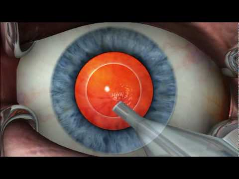 Benefits of Phaco-Emulsification Surgery for Cataract