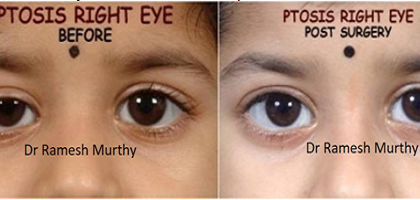 Know More About Ptosis