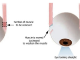 What to expect after squint surgery