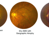 Eye Diseases In The Elderly